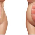 como curar la diastasis abdo