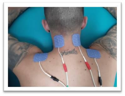 electroestimulador muscular TENS para cervicalgia
