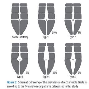 fotos de diástasis abdominaltipos de diástasis de recto abdominal